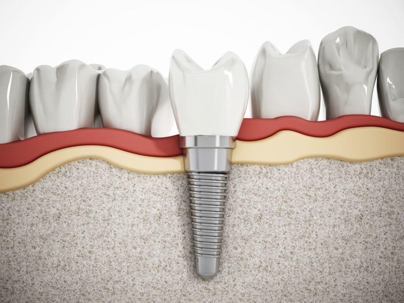 Implant dentaire : Quelle matière sélectionner ?